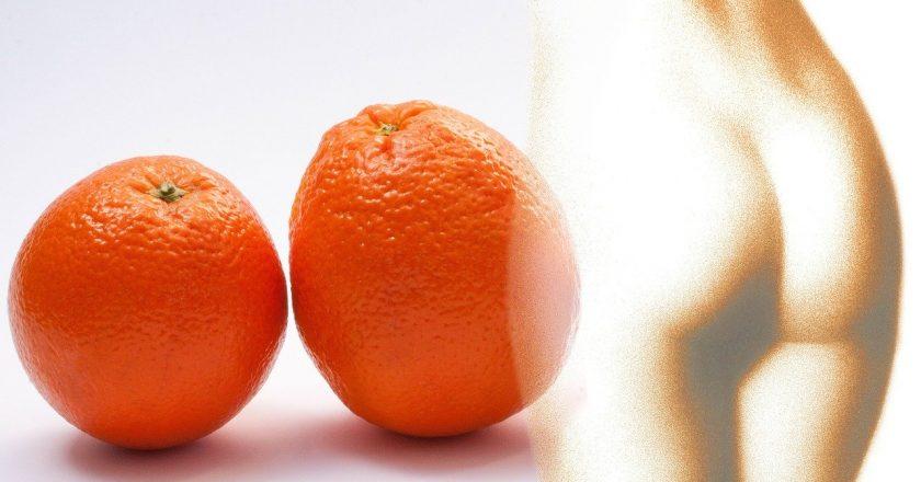 Consejos para que puedas eliminar la celulitis de los muslos